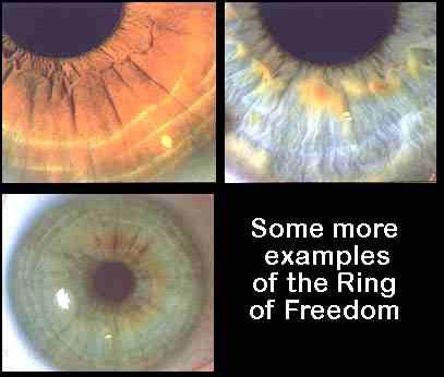 Ring Of Purpose Iridology